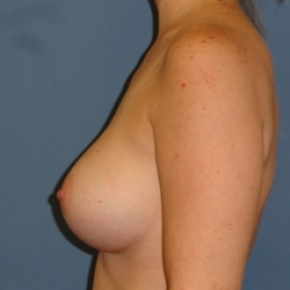After Photo - Breast Augmentation - Case #2940 - Lateral View