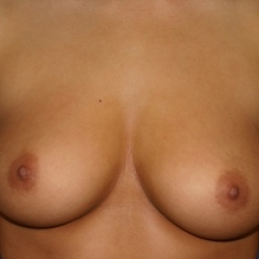 Before Photo - Breast Augmentation - Case #2941 - Endoscopic Breast Augmentation - Frontal View