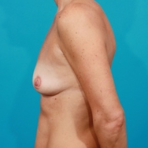 Before Photo - Breast Augmentation - Case #2511 - Silicone Breast Augmentation - Lateral View