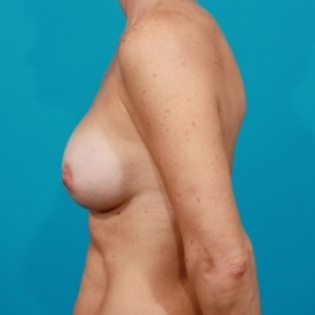 After Photo - Breast Augmentation - Case #2511 - Silicone Breast Augmentation - Lateral View