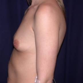 Before Photo - Breast Augmentation - Case #2545 - Breast Augmentation & PeriAreolar Cresant Mastopexy - Lateral View