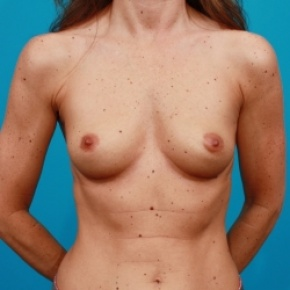 Before Photo - Breast Augmentation - Case #2470 - Silicone Breast Augmentation - Frontal View