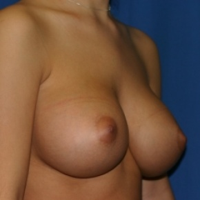 After Photo - Breast Augmentation - Case #2941 - Endoscopic Breast Augmentation - Oblique View