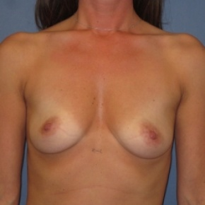 Before Photo - Breast Augmentation - Case #2945 - Frontal View