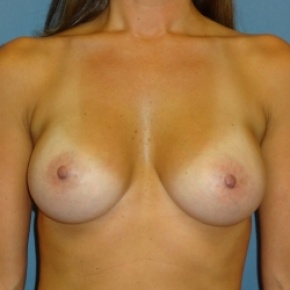 After Photo - Breast Augmentation - Case #2945 - Frontal View
