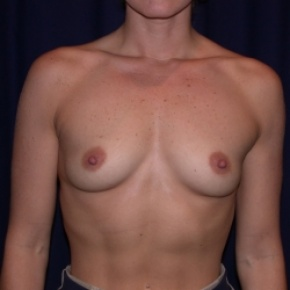 Before Photo - Breast Augmentation - Case #2513 - Breast Augmentation-PeriAreolar - Frontal View