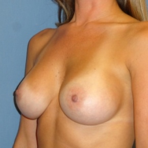 After Photo - Breast Augmentation - Case #2945 - Oblique View