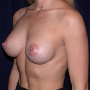 After Photo - Breast Augmentation - Case #2513 - Breast Augmentation-PeriAreolar - Oblique View