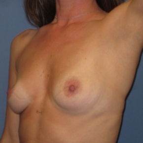 Before Photo - Breast Augmentation - Case #2945 - Posterior Oblique View