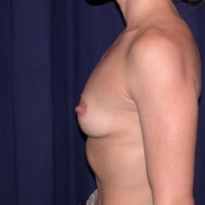 Before Photo - Breast Augmentation - Case #2513 - Breast Augmentation-PeriAreolar - Lateral View
