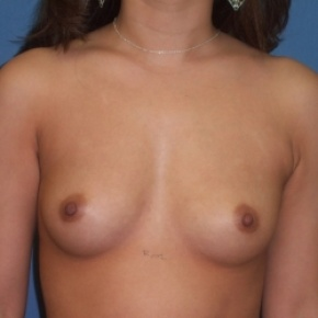 Before Photo - Breast Augmentation - Case #2946 - Frontal View
