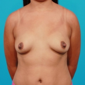 Before Photo - Breast Augmentation - Case #2538 - Silicone Breast Implants - Frontal View