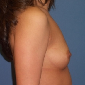 Before Photo - Breast Augmentation - Case #2946 - Lateral View