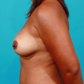 After Photo - Breast Augmentation - Case #2538 - Silicone Breast Implants - Lateral View