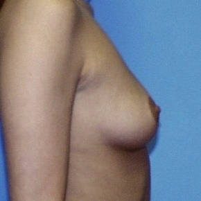 Before Photo - Breast Augmentation - Case #2587 - Saline Breast Implants - Oblique View