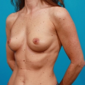 Before Photo - Breast Augmentation - Case #2470 - Silicone Breast Augmentation - Oblique View