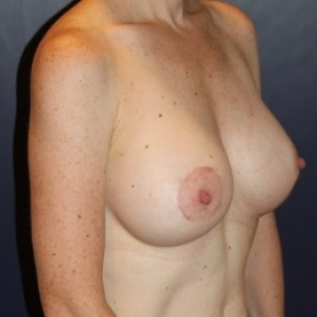 After Photo - Breast Augmentation - Case #2970 - Natural Proportional Breast Augmentation - Oblique View