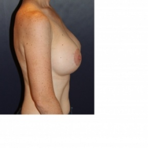 After Photo - Breast Augmentation - Case #2970 - Natural Proportional Breast Augmentation - Lateral View