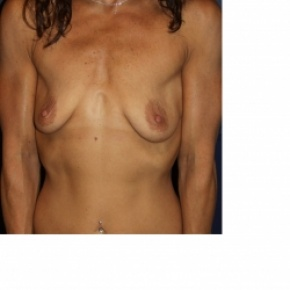 Before Photo - Breast Augmentation - Case #2971 - Natural Proportional Breast Augmentation - Frontal View