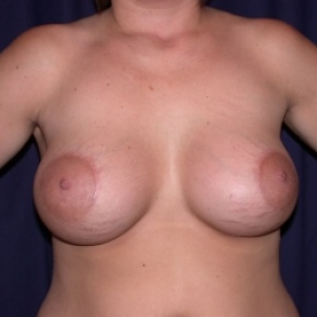 After Photo - Breast Augmentation - Case #2548 - Bilateral Breast Augmentation with Circle Mastopexy's - Frontal View