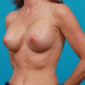 After Photo - Breast Augmentation - Case #2470 - Silicone Breast Augmentation - Oblique View