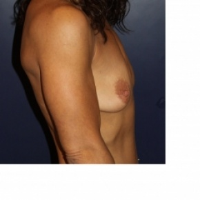 Before Photo - Breast Augmentation - Case #2971 - Natural Proportional Breast Augmentation - Lateral View