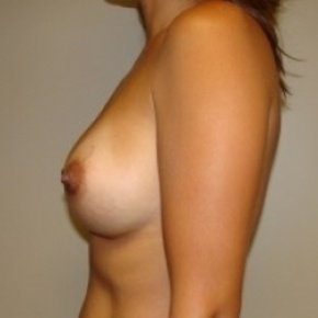 After Photo - Breast Augmentation - Case #2576 - Lateral View