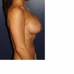 After Photo - Breast Augmentation - Case #2972 - Natural Proportional Breast Augmentation - Lateral View