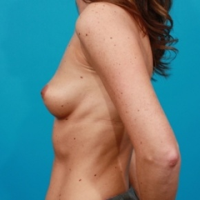 Before Photo - Breast Augmentation - Case #2470 - Silicone Breast Augmentation - Lateral View