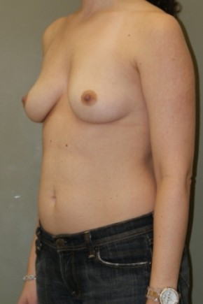 Before Photo - Breast Augmentation - Case #3480 - Oblique View