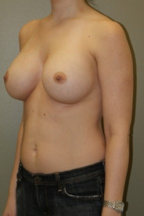 After Photo - Breast Augmentation - Case #3480 - Oblique View