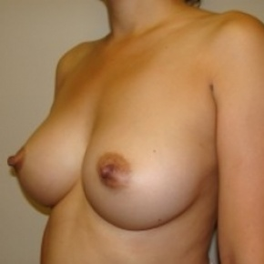 After Photo - Breast Augmentation - Case #2581 - Lateral View