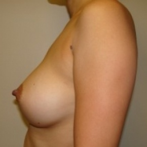 After Photo - Breast Augmentation - Case #2581 - Posterior Oblique View