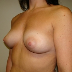 Before Photo - Breast Augmentation - Case #2639 - Oblique View