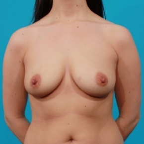 Before Photo - Breast Augmentation - Case #2471 - Saline Breast Implants - Frontal View