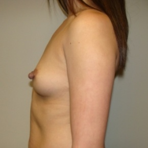 Before Photo - Breast Augmentation - Case #2641 - Lateral View