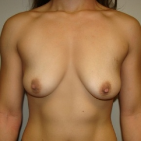Before Photo - Breast Augmentation - Case #2642 - Frontal View