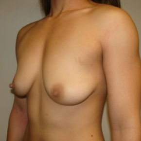 Before Photo - Breast Augmentation - Case #2642 - Oblique View