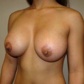 After Photo - Breast Augmentation - Case #2642 - Oblique View
