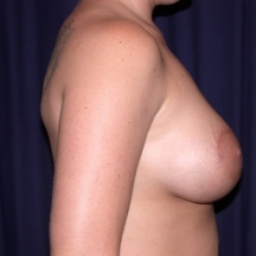 After Photo - Breast Augmentation - Case #2548 - Bilateral Breast Augmentation with Circle Mastopexy's - Lateral View