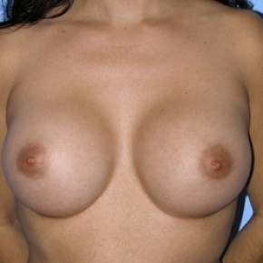 After Photo - Breast Augmentation - Case #2588 - Saline Breast Implants - Frontal View