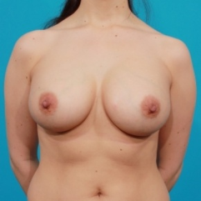 After Photo - Breast Augmentation - Case #2471 - Saline Breast Implants - Frontal View