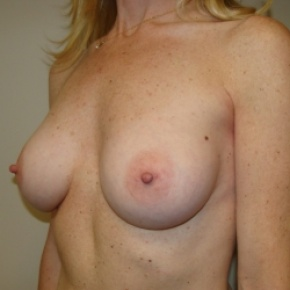 After Photo - Breast Augmentation - Case #2643 - Oblique View