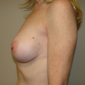 After Photo - Breast Augmentation - Case #2643 - Lateral View