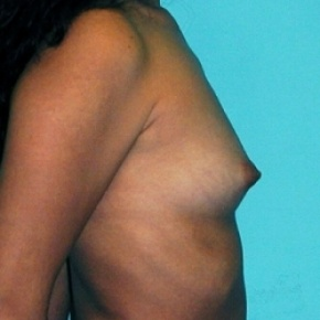 Before Photo - Breast Augmentation - Case #2588 - Saline Breast Implants - Oblique View