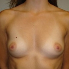 Before Photo - Breast Augmentation - Case #2645 - Frontal View