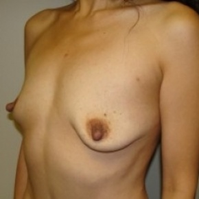 Before Photo - Breast Augmentation - Case #2646 - Oblique View