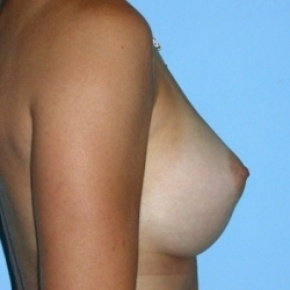 After Photo - Breast Augmentation - Case #2585 - Saline Breast Implants - Oblique View