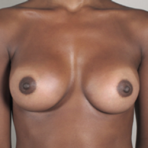 After Photo - Breast Augmentation - Case #2923 - Breast Augmentation New Jersey - Frontal View