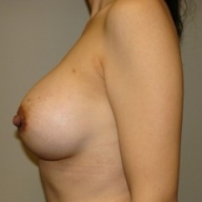 After Photo - Breast Augmentation - Case #2646 - Lateral View